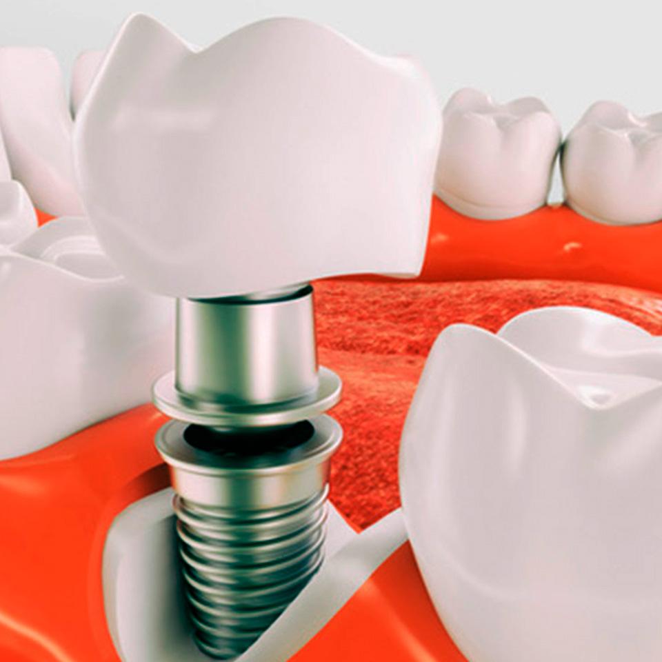 Implantes dentales. Implantología